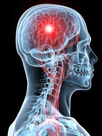 Brain and Spine Injury Lawyers